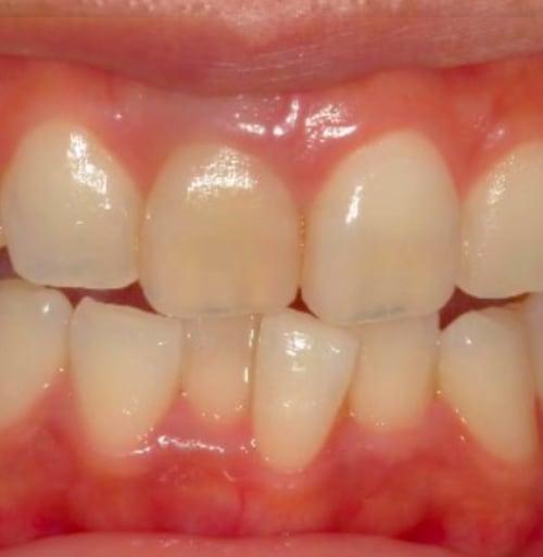 歯列矯正:治療前