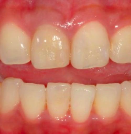 歯列矯正:治療後