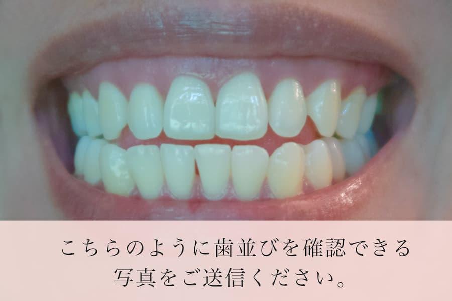 歯列の解る写真をお送りください